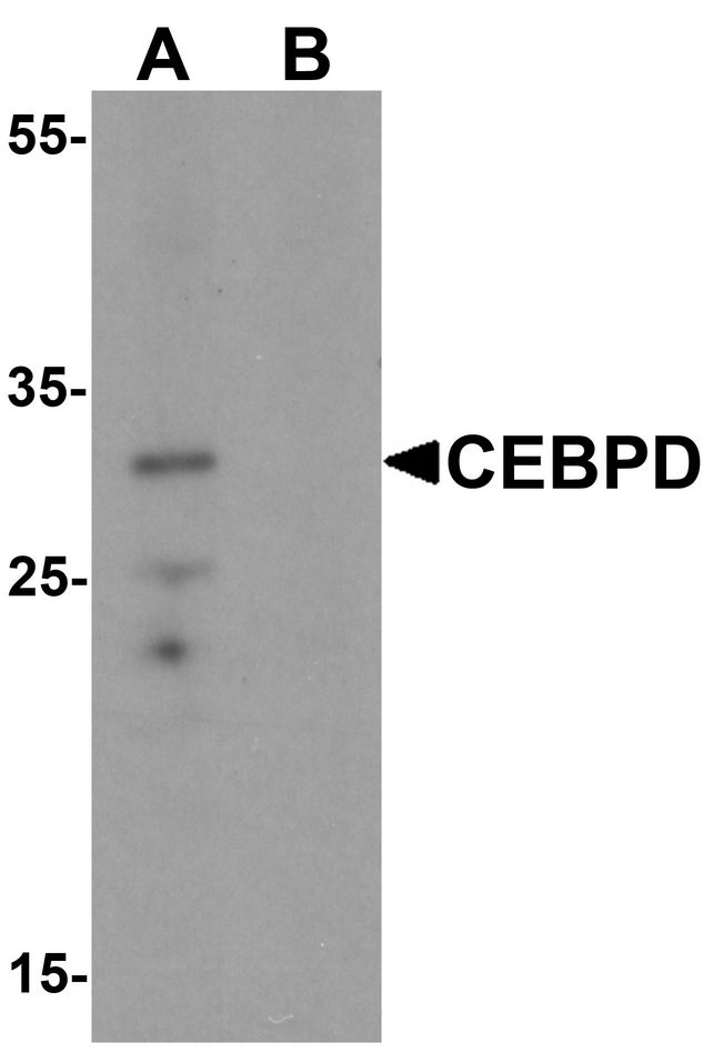 Western blot analysis of CEBPD in rat spleen tissue lysate with CEBPD antibody at 0.5 ug/ml in (A) the absence and (B) the presence of blocking peptide.