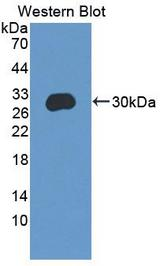 Western Blot; Sample: Recombinant protein.
