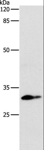 Western blot analysis of Mouse lung tissue, using CEBPD Polyclonal Antibody at dilution of 1:250.