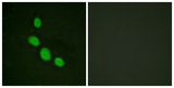 Immunofluorescence analysis of HeLa cells, using C/EBP-epsilon Antibody. The picture on the right is blocked with the synthesized peptide.
