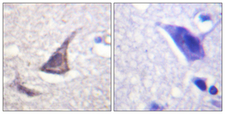 Immunohistochemistry analysis of paraffin-embedded human brain tissue, using C/EBP-epsilon Antibody. The picture on the right is blocked with the synthesized peptide.