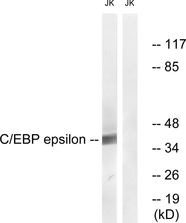 Western blot analysis of lysates from JurKat cells, treated with Insulin 0.01U/ml 15', using C/EBP-epsilon Antibody. The lane on the right is blocked with the synthesized peptide.