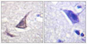 IHC of paraffin-embedded human brain tissue, using C/EBP-epsilon (Ab-74) Antibody. The picture on the right is treated with the synthesized peptide.
