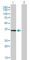 Western Blot analysis of CEBPE expression in transfected 293T cell line by CEBPE monoclonal antibody (M01), clone 7A4.Lane 1: CEBPE transfected lysate(30.6 KDa).Lane 2: Non-transfected lysate.
