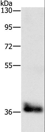Western blot analysis of Mouse liver tissue, using CEBPE Polyclonal Antibody at dilution of 1:650.