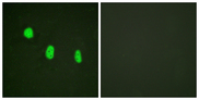 Immunofluorescence analysis of HeLa cells, using C/EBP-epsilon (Phospho-Thr74) Antibody. The picture on the right is blocked with the phospho peptide.