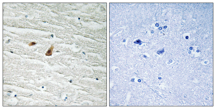 Immunohistochemistry analysis of paraffin-embedded human brain, using C/EBP-epsilon (Phospho-Thr74) Antibody. The picture on the right is blocked with the phospho peptide.