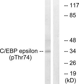 Western blot analysis of lysates from HUVEC cells treated with UV 15', using C/EBP-epsilon (Phospho-Thr74) Antibody. The lane on the right is blocked with the phospho peptide.