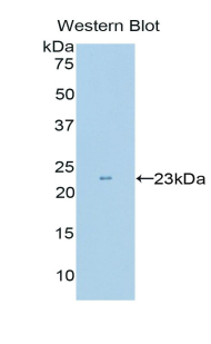 c-Kit / CD117 Antibody - Western blot of recombinant c-Kit / CD117.  This image was taken for the unconjugated form of this product. Other forms have not been tested.