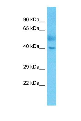 Western blot of Human Lung Tumor. MAF antibody dilution 1.0 ug/ml.  This image was taken for the unconjugated form of this product. Other forms have not been tested.
