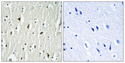 Immunohistochemistry analysis of paraffin-embedded human brain tissue, using CSK Antibody. The picture on the right is blocked with the synthesized peptide.