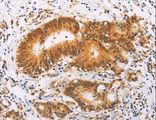 Immunohistochemistry of paraffin-embedded Human colon cancer using SRC Polyclonal Antibody at dilution of 1:20.