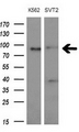 Western blot of extracts (10ug) from 2 different cell lines by using anti- MARK3monoclonal antibody at 1:200 dilution.