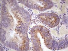 C-TAK1 / MARK3 Antibody - IHC of paraffin-embedded Adenocarcinoma of Human colon tissue using anti-MARK3 mouse monoclonal antibody. (heat-induced epitope retrieval by 1 mM EDTA in 10mM Tris, pH8.5, 120°C for 3min).