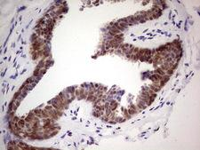 C-TAK1 / MARK3 Antibody - IHC of paraffin-embedded Human breast tissue using anti-MARK3 mouse monoclonal antibody. (Heat-induced epitope retrieval by 1 mM EDTA in 10mM Tris, pH8.5, 120°C for 3min).