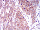 IHC of paraffin-embedded bladder cancer tissues using MARK3 mouse monoclonal antibody with DAB staining.