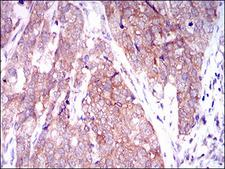 C-TAK1 / MARK3 Antibody - IHC of paraffin-embedded bladder cancer tissues using MARK3 mouse monoclonal antibody with DAB staining.