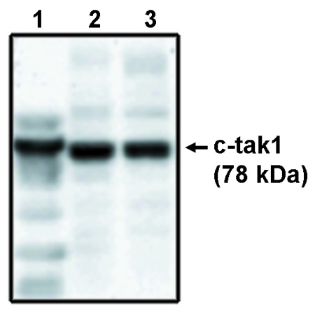 Western blot of c-tak1 antibody (LS-C140488) on His-tagged c-tak1 (1), RKO cell lysate (2) and HCT116 cell lysate (3).
