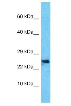 C10orf131 Antibody - C10orf131 antibody Western Blot of HepG2. Antibody dilution: 1 ug/ml.  This image was taken for the unconjugated form of this product. Other forms have not been tested.
