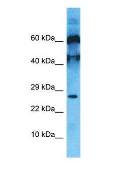 C10orf131 Antibody - Western blot of C10orf131 Antibody with human PANC1 Whole Cell lysate.  This image was taken for the unconjugated form of this product. Other forms have not been tested.