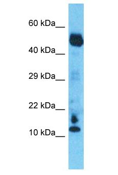 C10orf55 antibody Western Blot of Esophagus Tumor. Antibody dilution: 1 ug/ml.  This image was taken for the unconjugated form of this product. Other forms have not been tested.