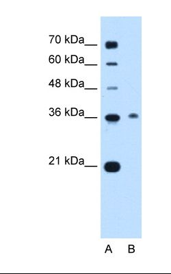 Lane A: Marker. Lane B: Jurkat cell lysate. Antibody concentration: 0.5 ug/ml. Gel concentration: 12%.  This image was taken for the unconjugated form of this product. Other forms have not been tested.