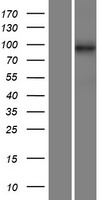 C14orf104 Protein - Western validation with an anti-DDK antibody * L: Control HEK293 lysate R: Over-expression lysate