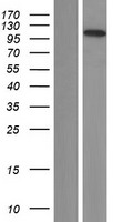 C14orf131 / ZNF839 Protein - Western validation with an anti-DDK antibody * L: Control HEK293 lysate R: Over-expression lysate