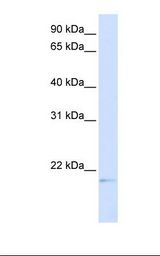C14orf180 Antibody - Transfected 293T cell lysate. Antibody concentration: 1.0 ug/ml. Gel concentration: 12%.  This image was taken for the unconjugated form of this product. Other forms have not been tested.