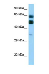 C16orf70 antibody Western blot of Placenta lysate. Antibody concentration 1 ug/ml.  This image was taken for the unconjugated form of this product. Other forms have not been tested.