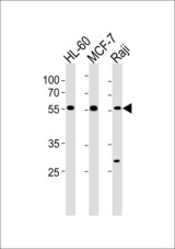 C16orf71 Antibody western blot of HL-60,MCF-7 and Raji cell line lysates (35 ug/lane). The C16orf71 antibody detected the C16orf71 protein (arrow).