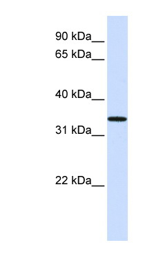 C16orf78 antibody LS-C102451 Western blot of Fetal Lung lysate.  This image was taken for the unconjugated form of this product. Other forms have not been tested.