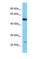 C17orf51 Antibody - Western blot of C17orf51 Antibody with human 721_B Whole Cell lysate.  This image was taken for the unconjugated form of this product. Other forms have not been tested.