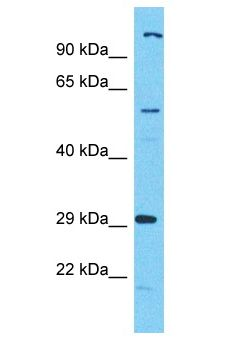 C17orf99 Antibody - C17orf99 antibody Western Blot of HeLa. Antibody dilution: 1 ug/ml.  This image was taken for the unconjugated form of this product. Other forms have not been tested.
