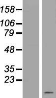 C19orf73 Protein - Western validation with an anti-DDK antibody * L: Control HEK293 lysate R: Over-expression lysate