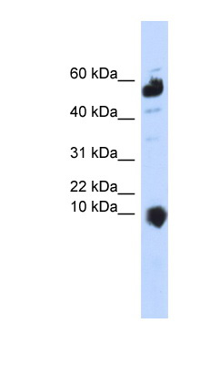C1orf151 antibody LS-C102141 Western blot of 293T cell lysate.  This image was taken for the unconjugated form of this product. Other forms have not been tested.