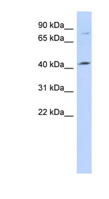 C1orf177 Antibody - C1orf177 antibody Western blot of 721_B cell lysate. This image was taken for the unconjugated form of this product. Other forms have not been tested.