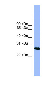 C1orf216 antibody Western blot of MCF7 cell lysate. This image was taken for the unconjugated form of this product. Other forms have not been tested.