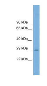 C1orf43 Antibody - C1orf43 antibody Western blot of Fetal Muscle lysate. This image was taken for the unconjugated form of this product. Other forms have not been tested.