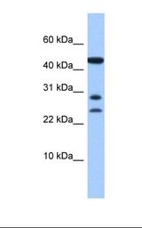 C20orf141 Antibody - Hela cell lysate. Antibody concentration: 1.0 ug/ml. Gel concentration: 10-20%.  This image was taken for the unconjugated form of this product. Other forms have not been tested.