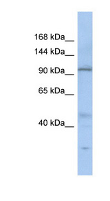 C20orf194 Antibody - C20orf194 antibody Western blot of SH-SYSY lysate. This image was taken for the unconjugated form of this product. Other forms have not been tested.