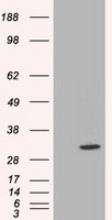 C21orf59 Antibody - HEK293T cells were transfected with the pCMV6-ENTRY control (Left lane) or pCMV6-ENTRY C21orf59 (Right lane) cDNA for 48 hrs and lysed. Equivalent amounts of cell lysates (5 ug per lane) were separated by SDS-PAGE and immunoblotted with anti-C21orf59.