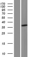C21orf91 Protein - Western validation with an anti-DDK antibody * L: Control HEK293 lysate R: Over-expression lysate