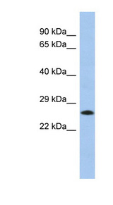 C2orf27A / C2orf27 Antibody - C2orf27B antibody Western blot of Fetal Lung lysate. This image was taken for the unconjugated form of this product. Other forms have not been tested.