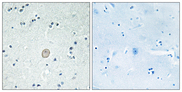 Immunohistochemistry analysis of paraffin-embedded human brain tissue, using C3AR1 Antibody. The picture on the right is blocked with the synthesized peptide.