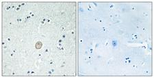 C3AR / C3a Receptor Antibody - Immunohistochemistry analysis of paraffin-embedded human brain tissue, using C3AR1 Antibody. The picture on the right is blocked with the synthesized peptide.