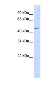 C3orf17 antibody Western blot of HeLa lysate. This image was taken for the unconjugated form of this product. Other forms have not been tested.