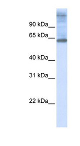 C3orf17 antibody Western blot of 721_B cell lysate. This image was taken for the unconjugated form of this product. Other forms have not been tested.