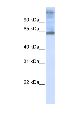 C3orf17 antibody LS-C102138 Western blot of 721_B cell lysate.  This image was taken for the unconjugated form of this product. Other forms have not been tested.