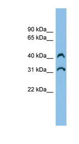 C3orf33 Antibody - C3orf33 antibody Western blot of Fetal Kidney lysate. This image was taken for the unconjugated form of this product. Other forms have not been tested.